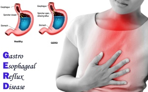 Gastroesophageal_Reflux_Disease_Homeopathic_Treatment